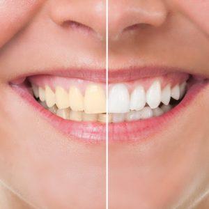 Equipo de la Torre tratamientos blanqueamiento dental