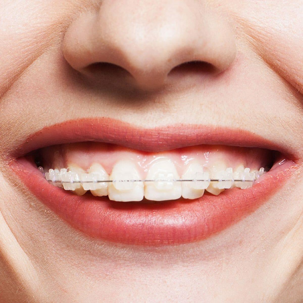 Equipo de la Torre tratamientos ortodoncia brakets cerámica
