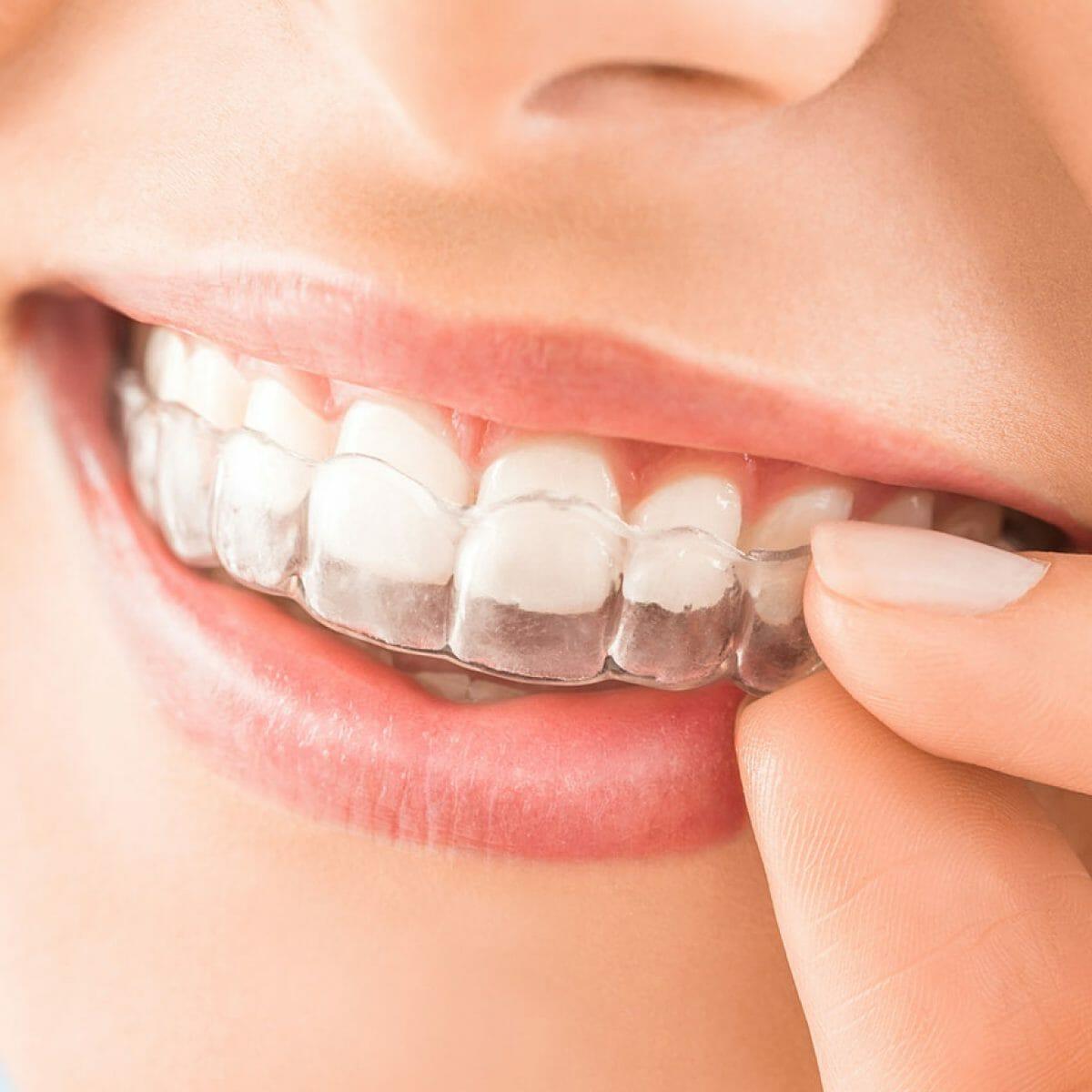 Equipo de la Torre tratamientos ortodoncia invisible