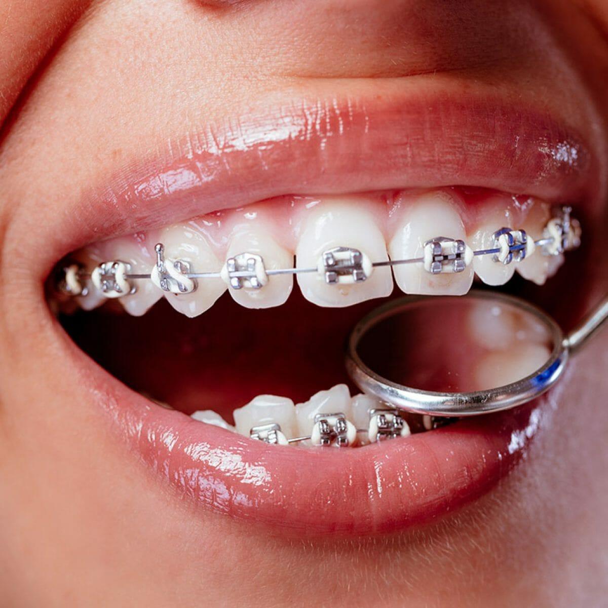 Equipo de la Torre tratamientos ortodoncia brackets metálicos