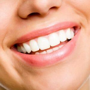 carillas dentales para embellecer la boca