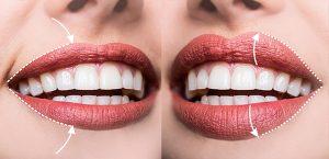 perfilado y rellenado de labios con ácido hialurónico